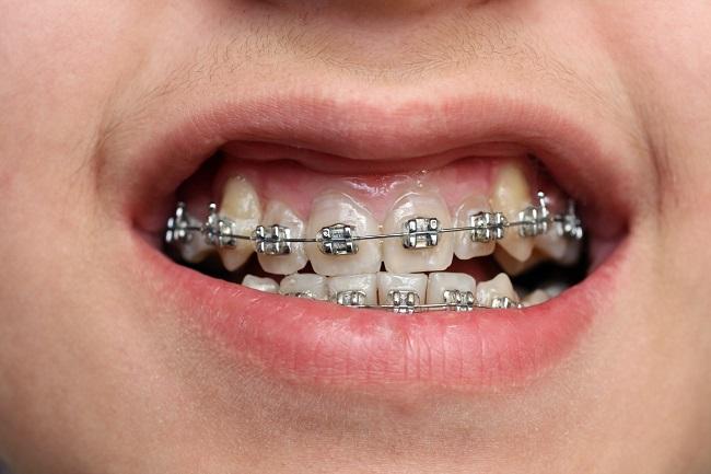 niềng-răng-có-chữa-cười-hở-lợi-hiệu-quả-không-2