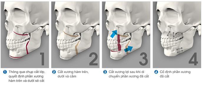tác-hại-phẫu-thuật-hàm-hô-2