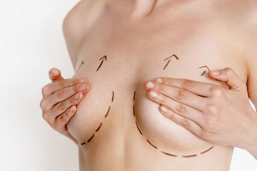 cách-nâng-ngực-chảy-xệ-tại-nhà-5