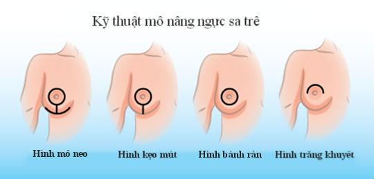cách-nâng-ngực-chảy-xệ-tại-nhà-7