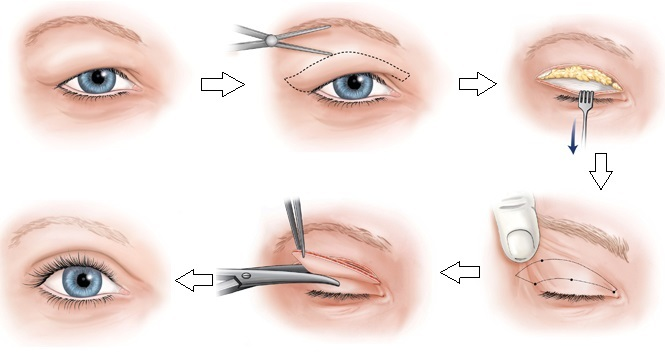 lấy-mỡ-thừa-mí-mắt-2