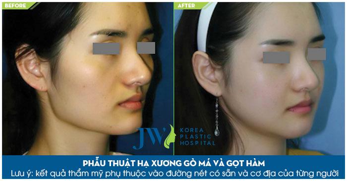phau-thuat-ha-xuong-go-ma-co-nguy-hiem-khong-5