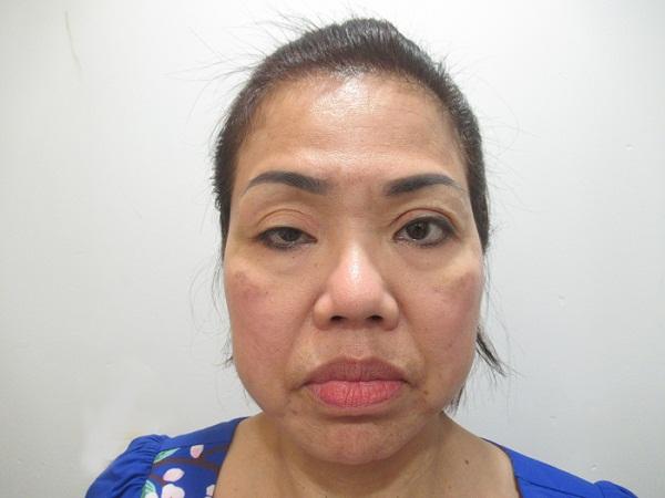 hình ảnh Cô Oanh trước khi điều trị