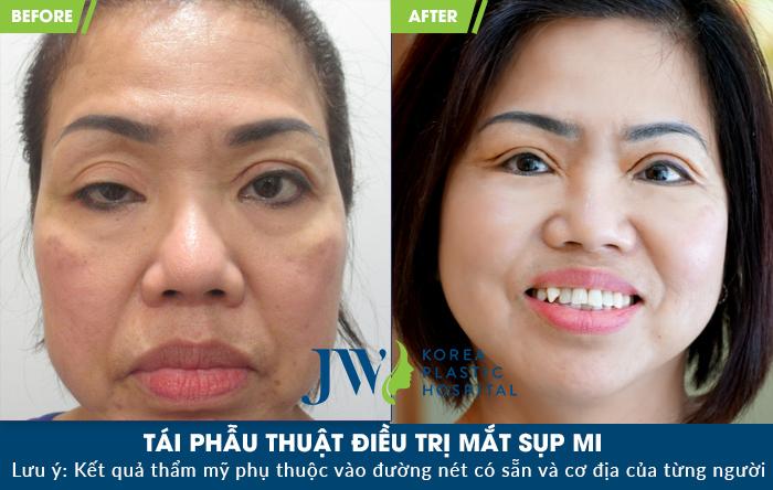 hình ảnh trước và sau khi điều trị