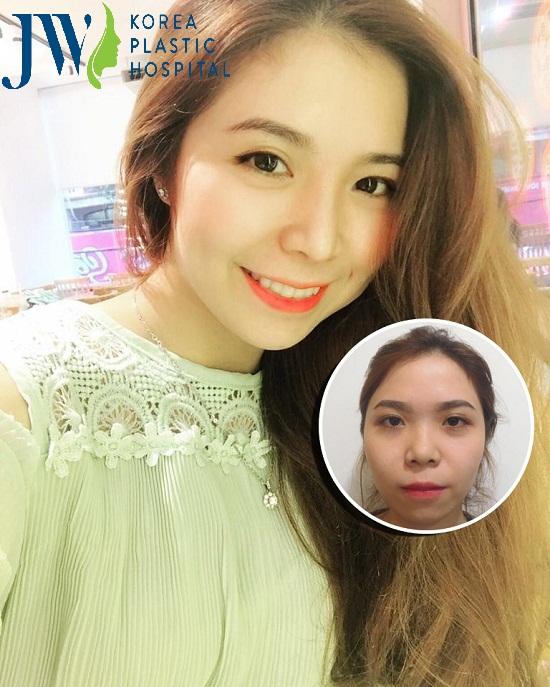 nang-mui-s-line-co-dau-khong_2
