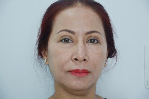 Cắt mí mắt bị sâu – Nguyên nhân và cách khắc phục-hình 2