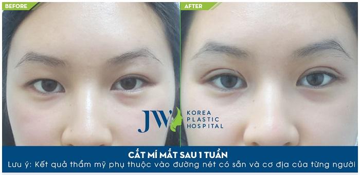 4 điều cần lưu ý khi cắt mí mắt Hàn Quốc-hình 6