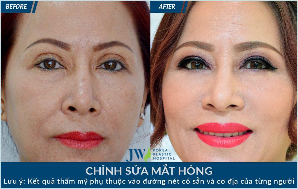 Cắt mí mắt bị sâu – Nguyên nhân và cách khắc phục-hình 5