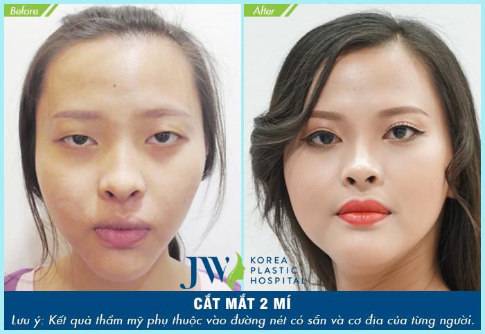 Cắt mí mắt bị sâu – Nguyên nhân và cách khắc phục-hình 6