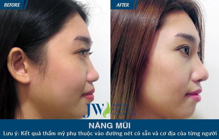phẫu thuật nâng mũi hàn quốc
